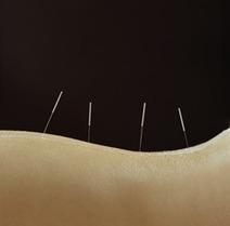 Fibromyalgia Treatment - Acupuncture as Fibromyalgia Treatment - Acupuncture as Chronic Fatigue Syndrome Treatment | Acupuncture for CFS and ME | Scoop.it