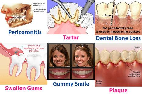 Gum Care Tips: Gum Disease Causes & Treatment of Bleeding Gums | Dental health conditions, Treatments & remedies. | Scoop.it