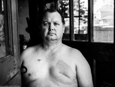 When Men Get Breast Cancer | cancer survivorship | Scoop.it