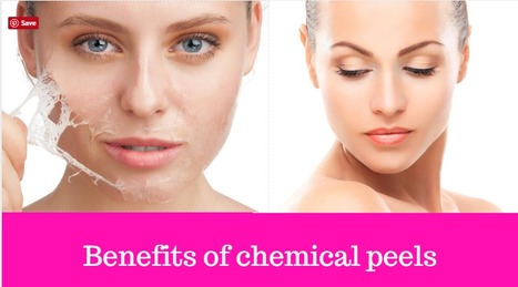 Chemical Peel and the Pathology Behind It  | Berkowits Hair & Skin Clinic | Scoop.it