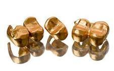 Comment vendre des dents en or - - | Questions sur Lor | Scoop.it