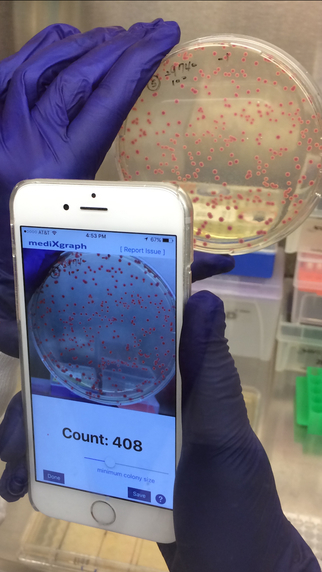 CFU Scope - Colony Forming Unit Counter | Plant-Microbe Symbiosis | Scoop.it