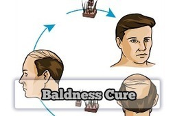 Baldness Cure with the Best Hair Loss Treatment | Baldness Cure | Scoop.it