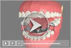 Dentures Burien Wa, Seatac Wa, Tukwila WA, Kent WA & Renton WA - Dentures Care Center | Tooth Extraction in Victorville CA | Scoop.it