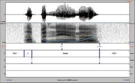 Transcribing Prosodic Structure of Spoken Utterances with ToBI | Pronunciation Bites | Scoop.it