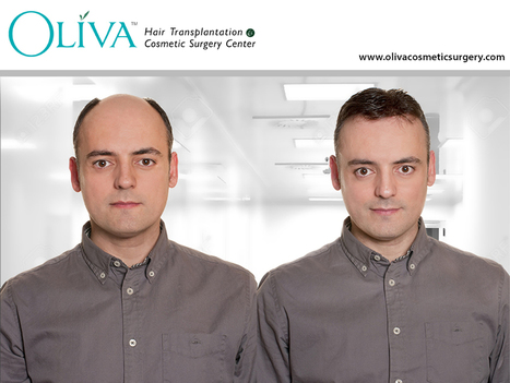 Cost of Hair Transplant in Hyderabad Before You Commit | Hair Treatments | Scoop.it