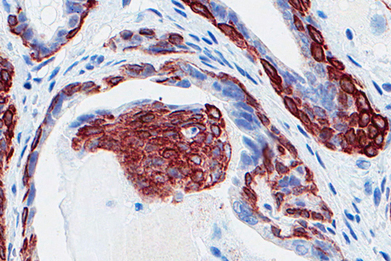 A Gene Family That Suppresses Prostate Cancer | Biology, Biotechnology, Medical research | Scoop.it
