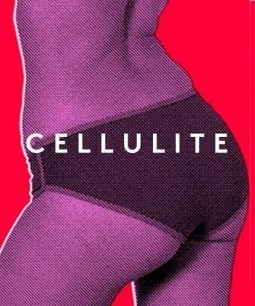 Cellulite Causes, Treatments, Creams And Facts 2013 - Refinery29 | SkinXO | Scoop.it