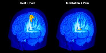 Meditatie werkt beter dan sommige pijnstillers - Scientias.nl | Meditatie & gezondheid | Scoop.it