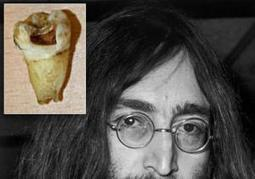 Canadian dentist hopes to clone John Lennon with rotten molar - New York Daily News | Murder | Scoop.it