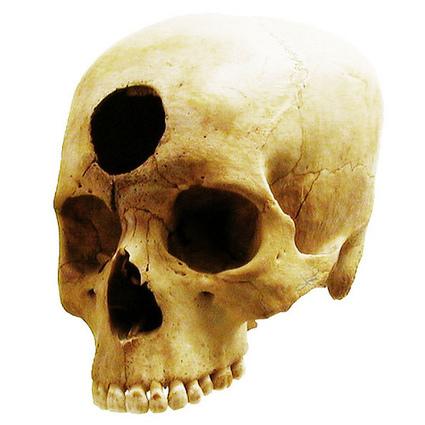 A Hole in the Head II: Trepanation in Peru | Archaeology News | Scoop.it