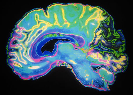 Neuroscientists Improve Cognition in Brains Riddled With Alzheimer's Toxins — PsyBlog | Social Neuroscience Advances | Scoop.it