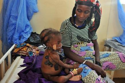 Niger: au moins 362 enfants morts de malnutrition entre janvier et ... - Jeune Afrique | Développer l'industrie agroalimentaire en Afrique | Scoop.it