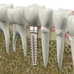 Are Affordable Dental Implants Right for You? - Dental Vacation | Dental Services | Scoop.it