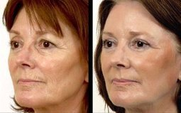 Get youthful appearance with Laser wrinkle reduction | Laser Hair Removal | Scoop.it