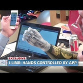 Meet the Man With iPhone-Controlled Bionic Arms | Strange days indeed... | Scoop.it