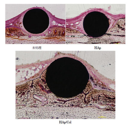 Hydroxyapatite/collagen nanocomposite-coated titanium rod for achieving rapid osseointegration onto bone surface - Journal of Biomedical Materials Research Part B: Applied Biomateri... | Dental Implant and Bone Regeneration | Scoop.it