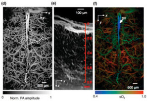 Photoacoustic Microscopy Enables Rapid Imaging of the Brain's Oxygen Metabolism | biotech new frontier | Scoop.it
