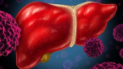 Blood markers peel back the curtain on a stealthy form of liver disease | Longevity science | Scoop.it