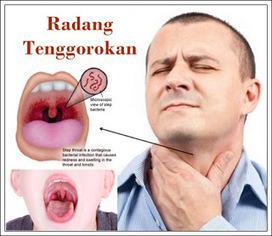 Obat Tradisional Sakit Menelan Radang Tenggorokan | agen jelly gamat gold-G | Scoop.it