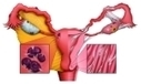 Endometriosis and Its Treatment with Oriental Methods | Alternative health Treatment | Scoop.it