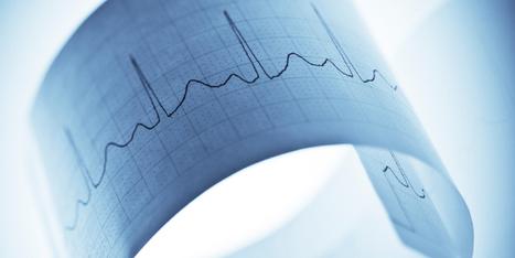Casos Clinicos de Cardiologia | Vanezka | Scoop.it