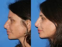 Our cosmetic surgeons are among the most experienced in cosmetic surgery for nose | Cosmeticsurgerydelhi | Scoop.it