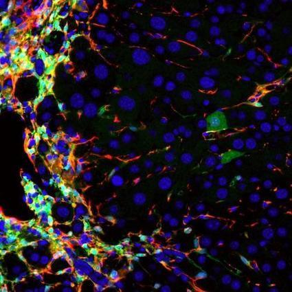 Cirrhosis-Causing Liver Cells Made Healthy in Mice | Hepatitis C New Drugs Review | Scoop.it