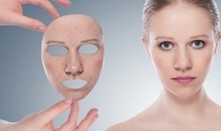 How to Remove Acne Scars | dubai cosmetic surgery | Scoop.it