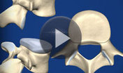 Condition Videos   Spine Centers of America   Spine Health   Scoop.it