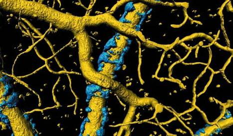 New Understanding of Cause of Alzheimer's Symptoms - Amyloid Plaques Could Be Strangling Blood Vessels | Social Neuroscience Advances | Scoop.it