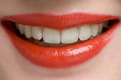 Sydney Dentist Tips: How to Have a Perfect Natural Looking Teeth | Sydney Dentist Blogs | Scoop.it