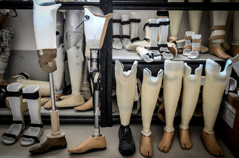 Creating 3D-printed prosthetic limbs for Ugandan children | Biology VCE | Scoop.it