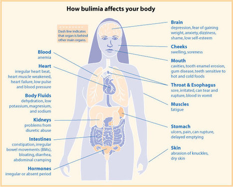 Bulimia nervosa fact sheet | womenshealth.gov | Eating Disorders in Teens | Scoop.it