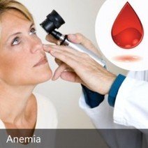 Overcome Anemia through Homeopathic Medicine | Online Homeopathy Treatment | Scoop.it