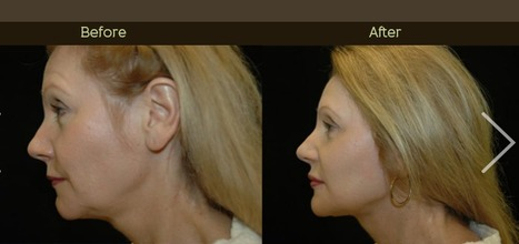 Get a wrinkle-free skin with liquid facelift   Las Colinas Centre for Plastic Surgery   Scoop.it