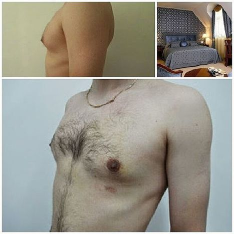 """Intermedline Medical tourism on Instagram: """"Gynecomastia in Romania. Also plastic surgery clinic  with affordable prices in India, Turkey, Thailand, Malaysia, Singapore, Israel,…"""" 