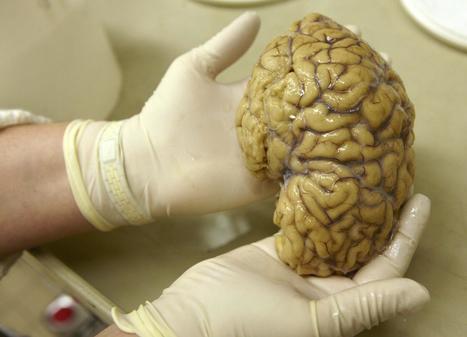 Aivojen puhekeskukseksi luultu alue onkin puhuessa kiinni | Psykologia | Scoop.it