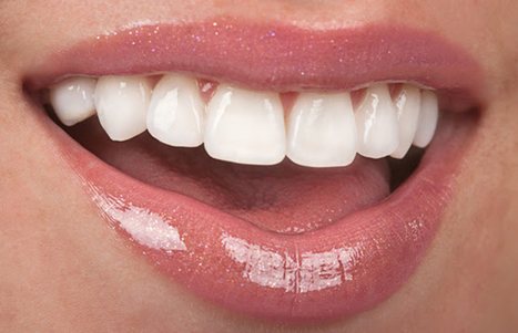 Wear A Dazzling Smile With The Help of Cosmetic Dentistry | Business | Scoop.it