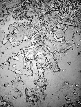 8 lágrimas vistas bajo microscopio revelan diferentes emociones | Reflejos | Scoop.it