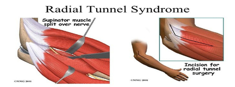 What Are Radial Tunnel Syndrome, Elbow Stiffness, and Elbow Arthritis?   Health & Wellness   Scoop.it