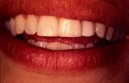 Dentiste R. AMOUYAL - Correction Facette céramique à Paris | Facette dentaire | Scoop.it