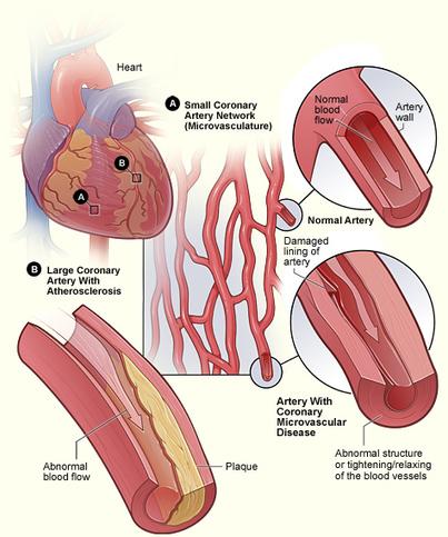 How Does Heart Disease Affect Women? | The Jett Journal | Scoop.it