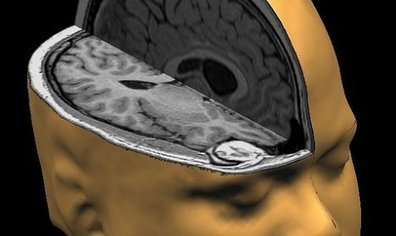 Brain Scans Show The Real Impact Love Has On A Child's Brain | TruthTheory | With My Right Brain | Scoop.it