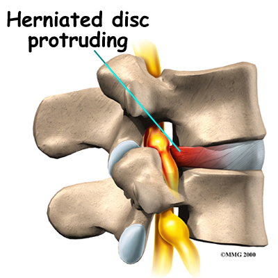 How a chiropractor can help to treat Spinal Disc Problems   How Chiropractor Can Help You To Get Rid From Pain   Scoop.it