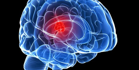 Brain Tumor - A Deadly Diseases | Hospitals Health Care | Scoop.it
