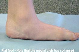 Foot Specialist in Delhi   medical   Scoop.it