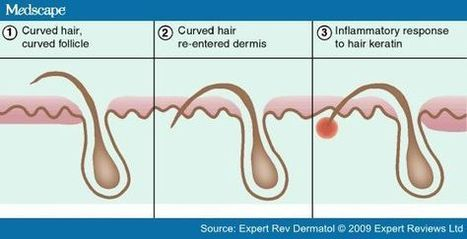 How to Prevent Ingrown Hairs in Men - Healthy Skin Solutions | Skin Care | Scoop.it