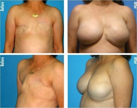 Plastic Surgery In Phuket Thailand: Breast Augmentation Photos In Phuket   Plastic SurgeryPhuket Thailand   Scoop.it