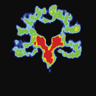 Identifying Signs of Chronic Brain Injury in Living Football Players - MIT Technology Review | Brain Tricks: Belief, Bias, and Blindspots | Scoop.it